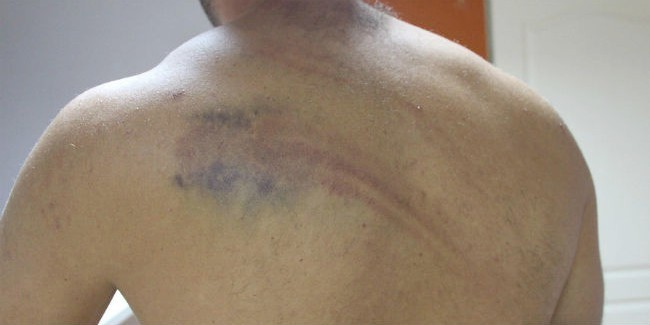 Молодой омич, чтобы досадить полицейским, избил сам себя шлангом