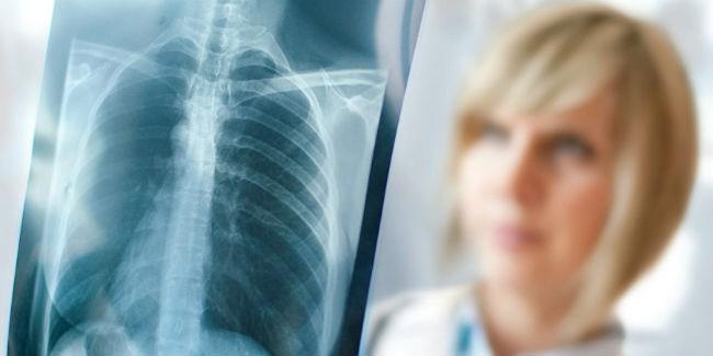 Заболеваемость и смертность от туберкулеза сократились в Беларуси в прошлом году на 14%