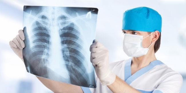 Омичи смогут пройти флюорографию, необращаясь в больницу