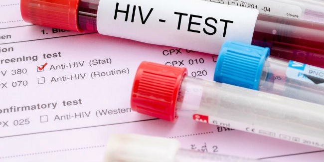 Поколичеству ВИЧ-инфицированных Кубань находится на22 месте в Российской Федерации